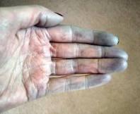 dedos de manos y pies morados